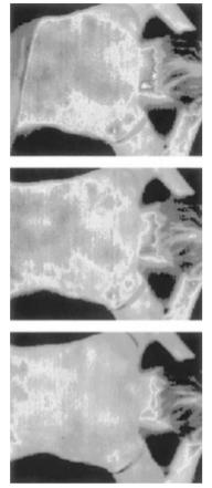 meridianos morfogenético